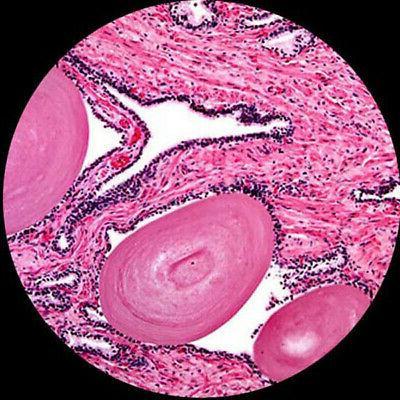AmScope Trinocular Biological Compound Microscope HD Camera